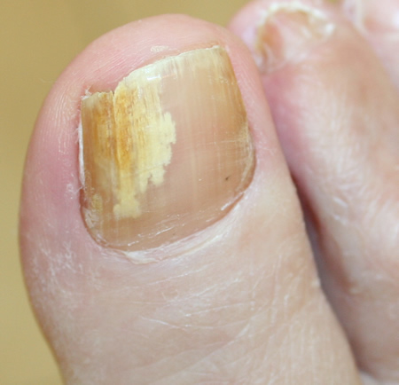 yellow cracked toenails