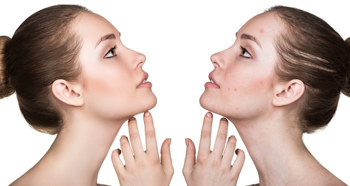 Benefits of hydroquinone creams
